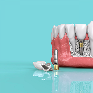 Which Medicare Advantage Plans Cover Dental Implants?